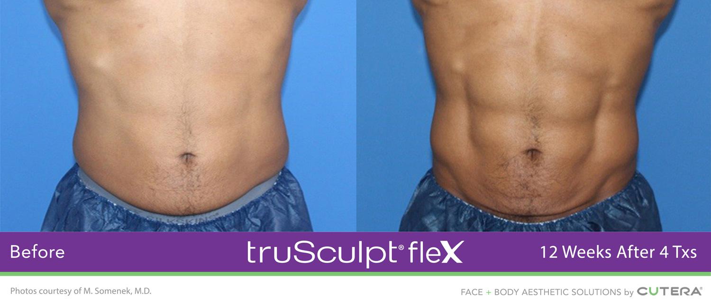 trusculpt-flex-1